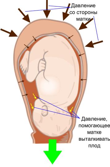 Схема движения плода при родах